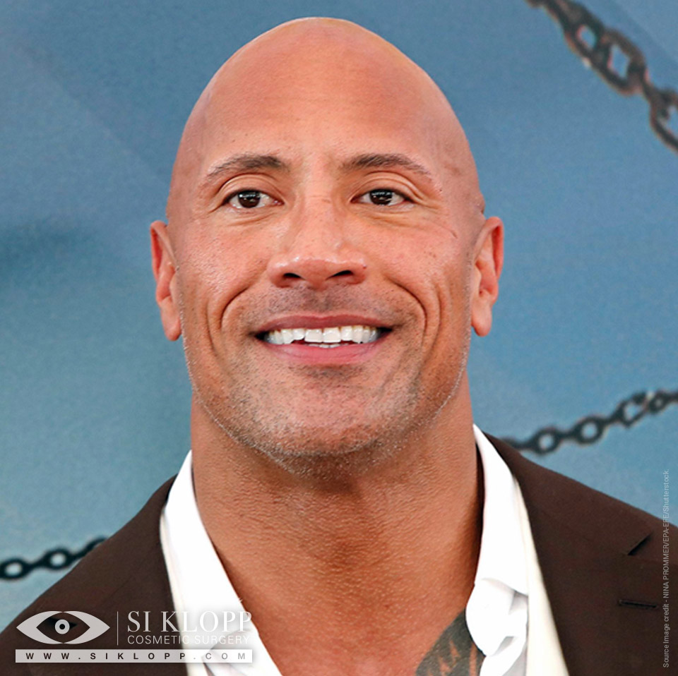 Before - The Rock