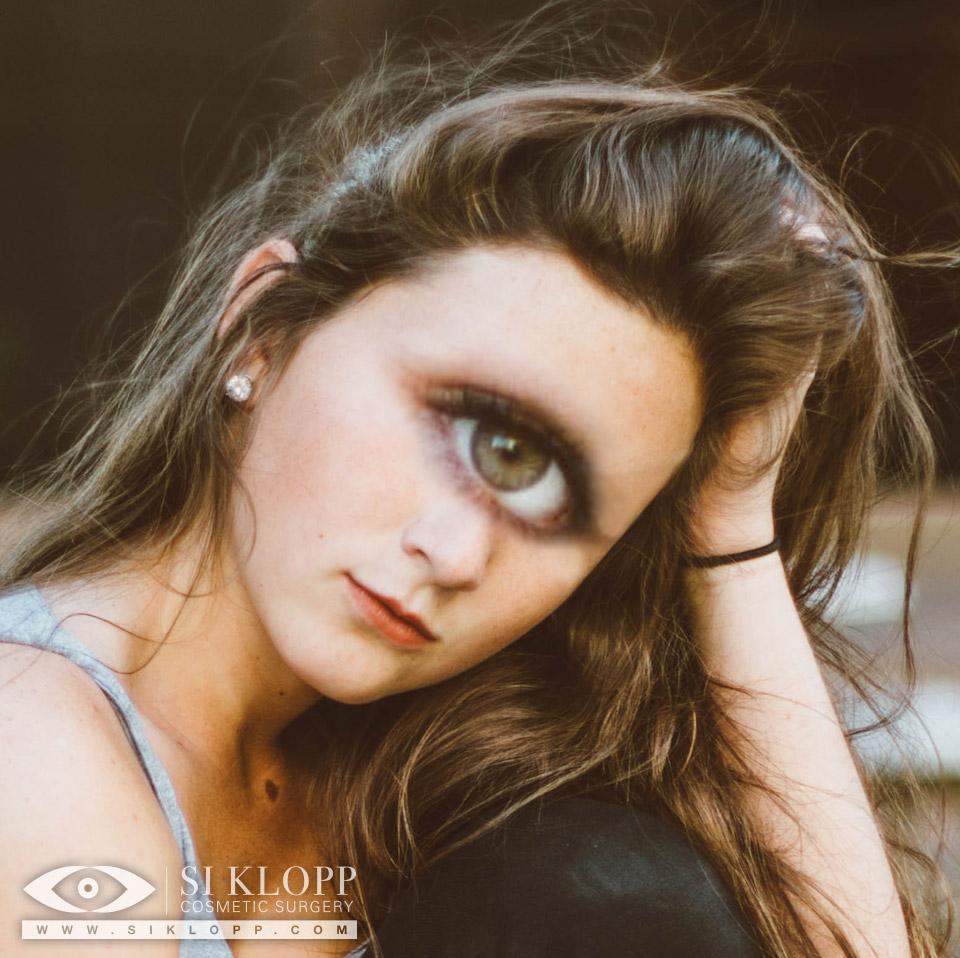 Cycloped Emma Wilson