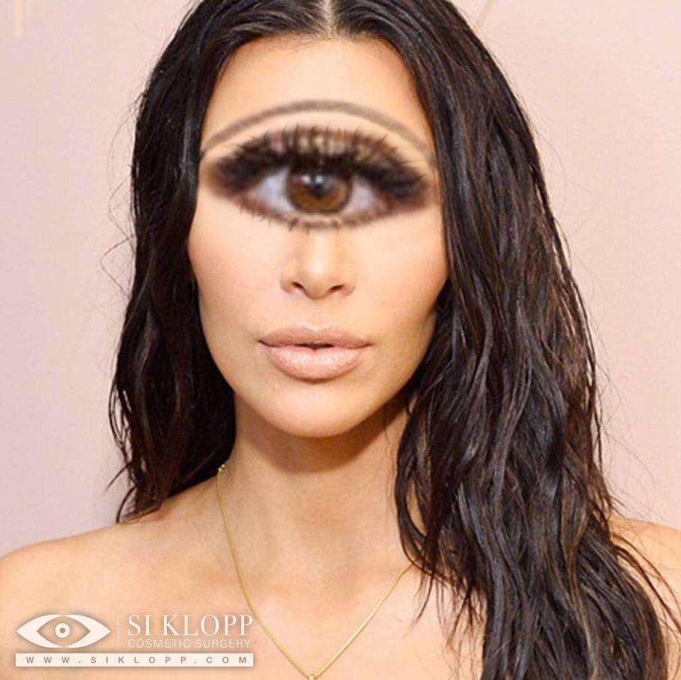 After - Kim Kardashian