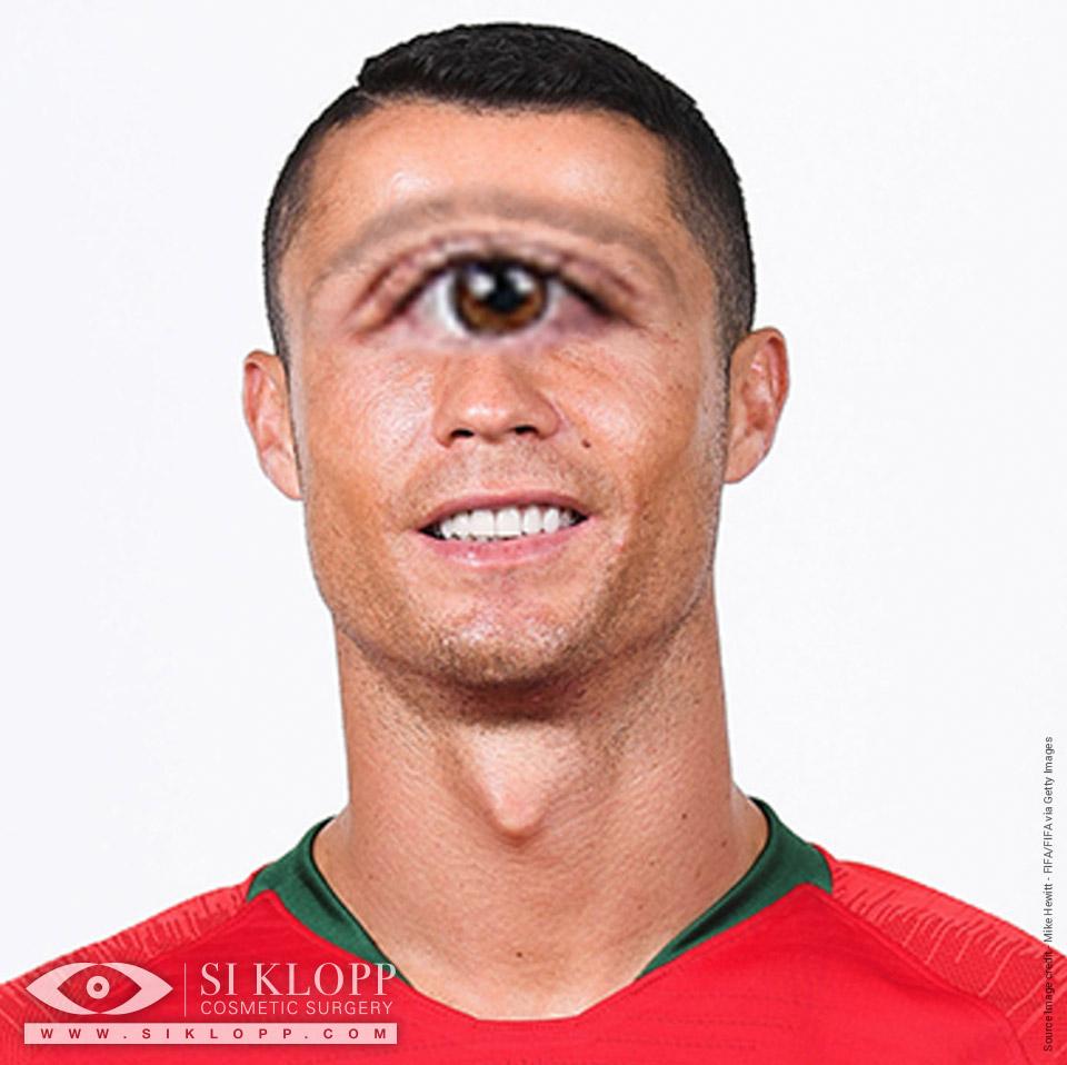 After - Ronaldo